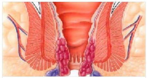 Descrizione di sintomi di emorroidi