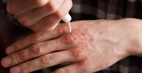Cura di psoriasi su rimedi di gente di mani